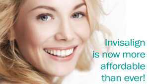 Invisalign-costs-300x169