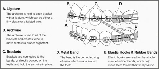 braces_diagram