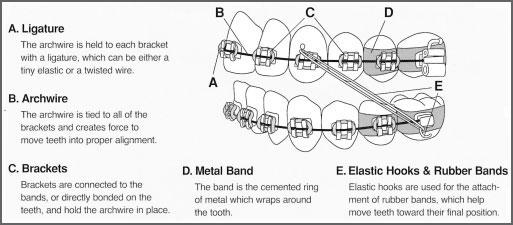 Braces diagram braces diagram bracesdiagram ccuart Choice Image